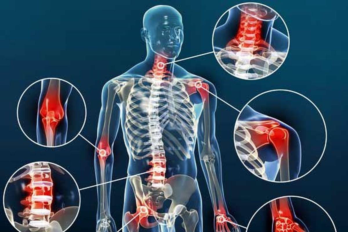 عوامل و علت های بیماری آرتروز