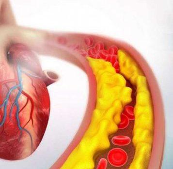 نشانه های کلسترول بالای خون